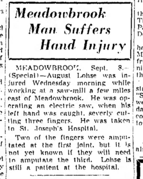 Lohse - August - hand injury -